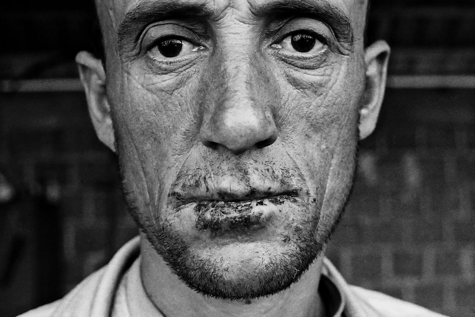Kosovo giugno 1999. Maurau Majredin, kosovaro di etnia albanese, imprigionato e torturato dalle milizie paramilitari serbe nel campo di Leskovac.