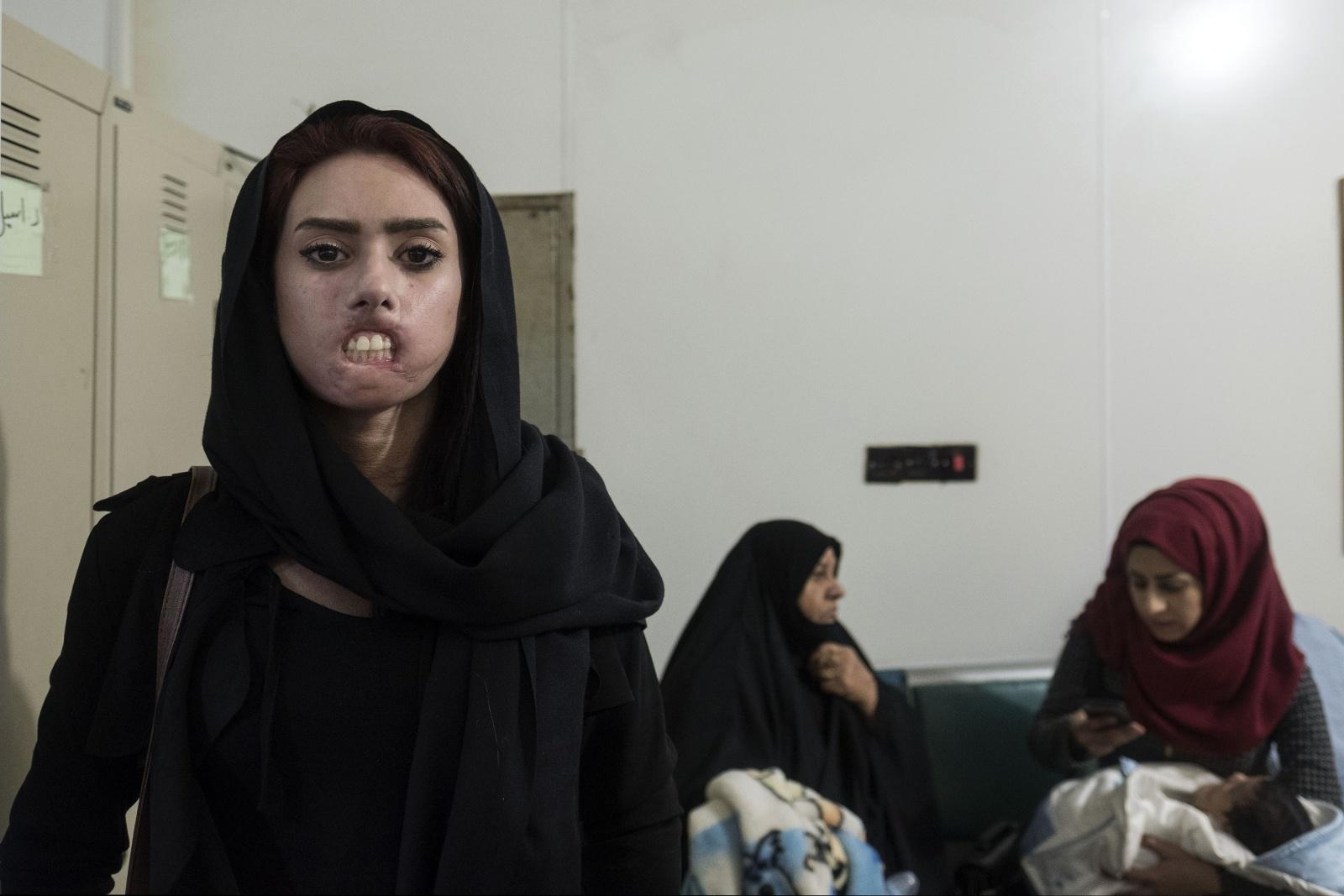 """Iraq, Habboubi Teaching Hospital di Nassiriya dove un equipe di dottori volontari italiani della onlus """"Emergenza Sorrisi"""" prestano cure mediche ai bambini con malformazioni al volto, ustioni e traumi di guerra"""