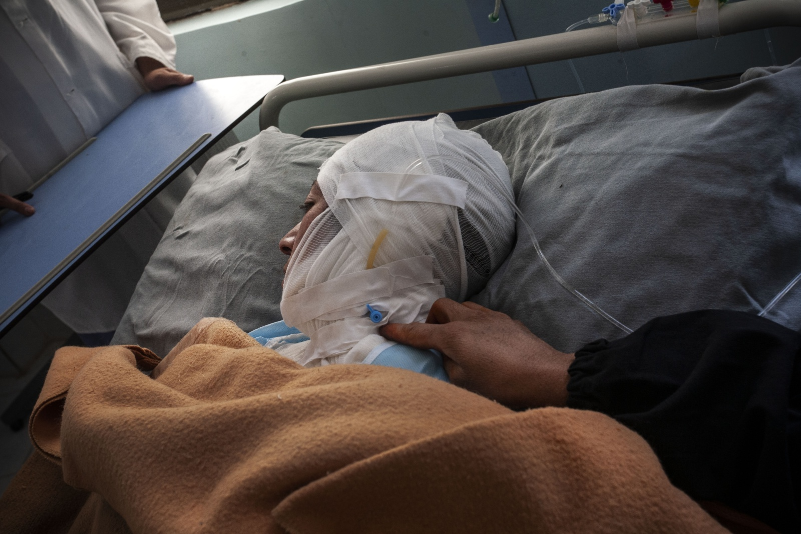 Afghanistan, ospedale Burning Centre di Herat dove vengono accolte le donne e i bambini ustionati.  The woman tragedy of self-immolation in Afghanistan